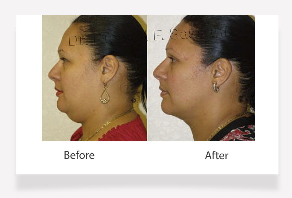 Double Chin Surgery Fort Lauderdale Cosmetic Surgery Facelift