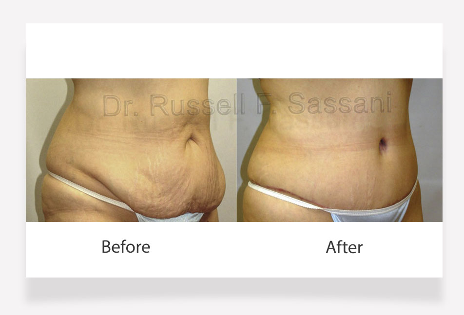 Tummy tuck results on a female patient