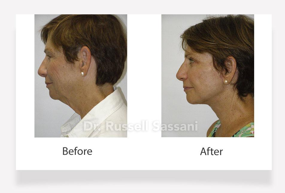 A female patient who got a face lift