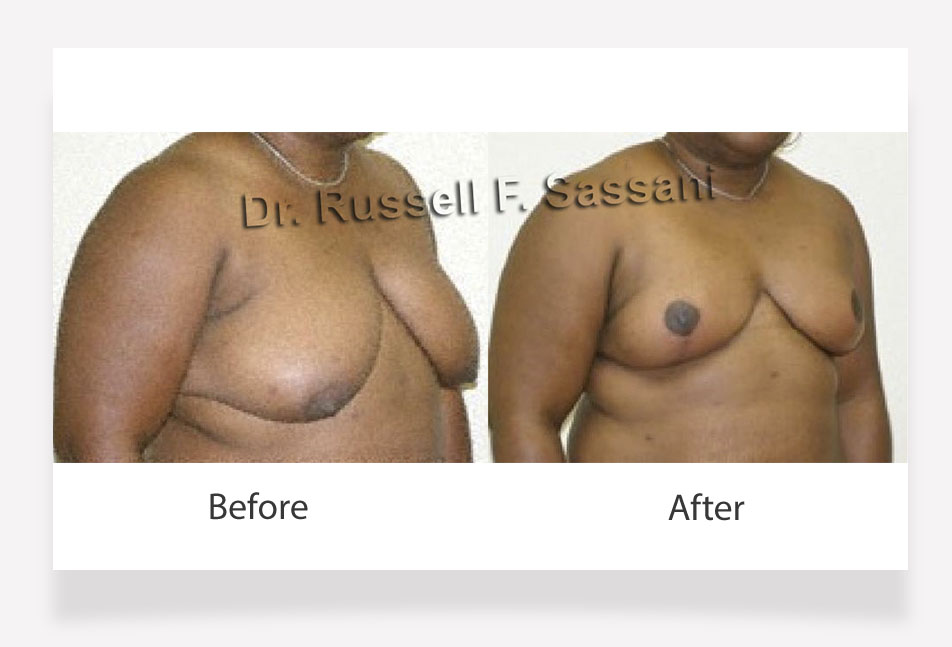 Breast reduction results on female patient