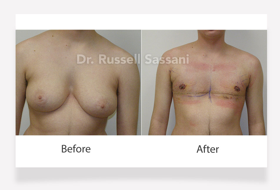 Top surgery results