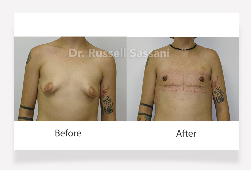 Before and after photos of top surgery